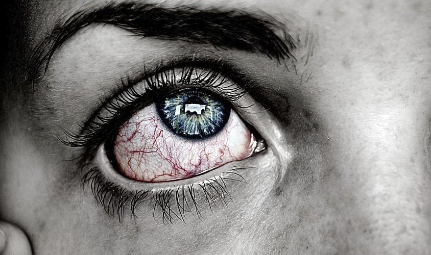 Vídeo: Vermelhidão nos olhos, coceira, ardência? Oftalmologista alerta para uso indevido de colírios