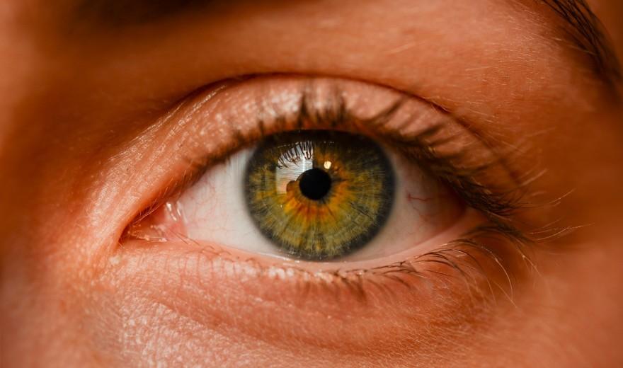 Vídeo: Cuide da higiene de seus olhos e evite a blefarite!