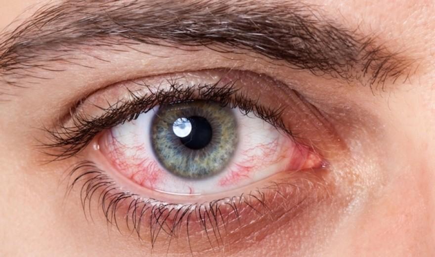 Vídeo: O que os olhos podem dizer sobre sua saúde